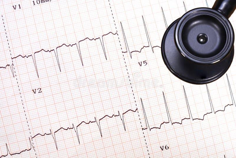 Trazo del ECG del corazón isquémico imagen de archivo libre de regalías