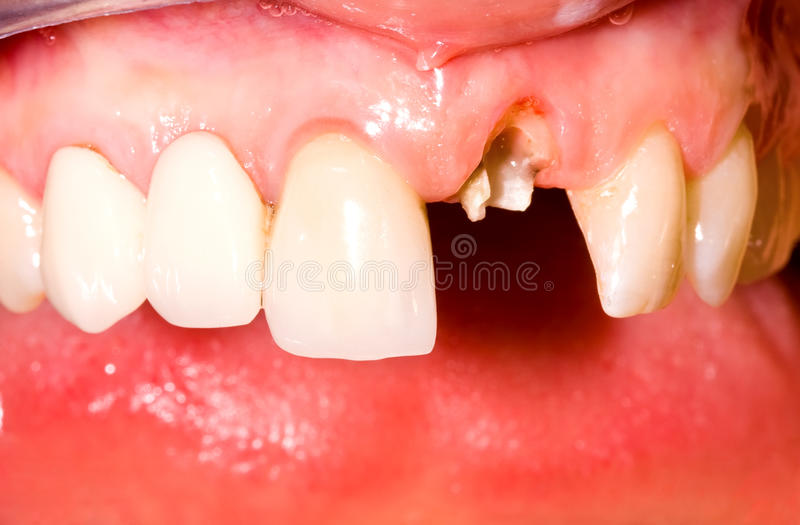 Download Before treatment stock photo. Image of medicine, dentist - 29420700