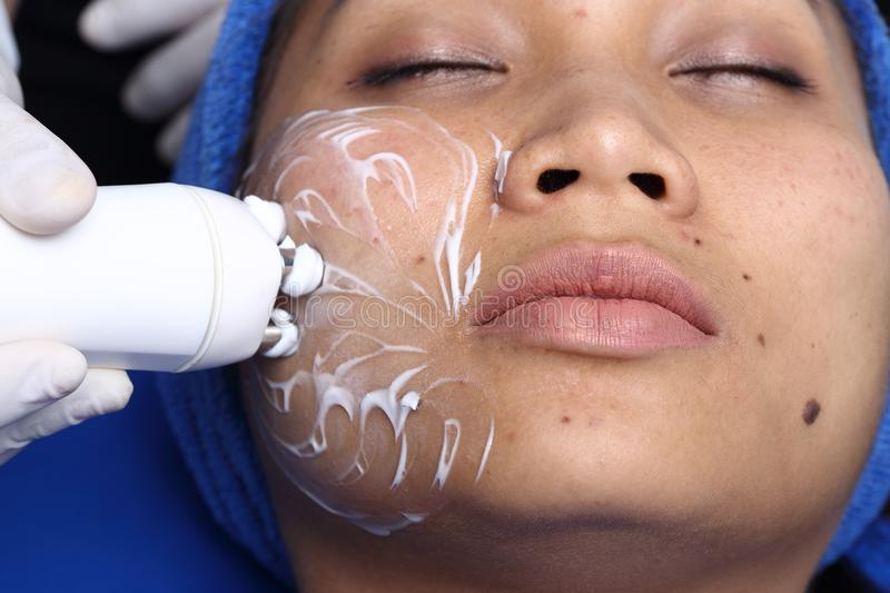 Medical beauty device instrument cold process on face in hospital clinic. Treatment on Asian Woman as patient to make skin smooth bright and cure acne with royalty free stock images