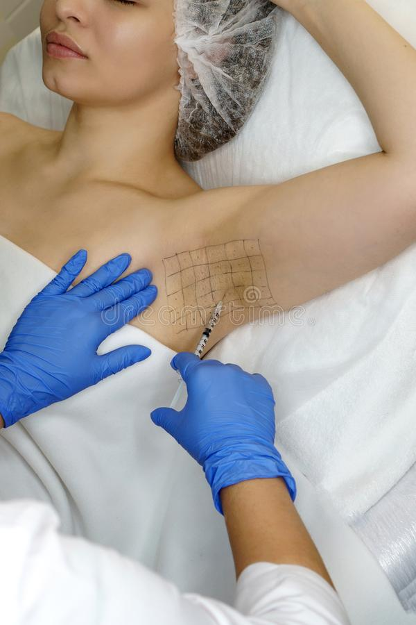 Treatment of hyperhidrosis. Hyaluronic Acid Injection royalty free stock image