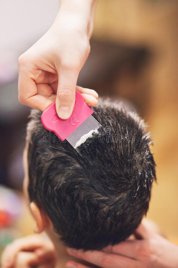 Treatment for lice stock images
