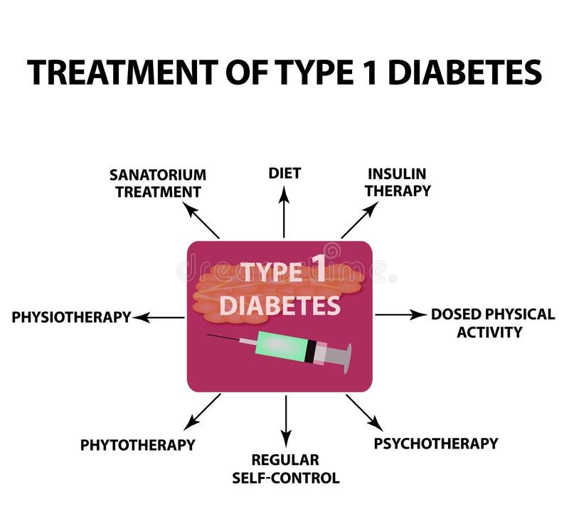 Treatment of Type 1 diabetes. Infographics. Vector illustration on isolated background. stock illustration