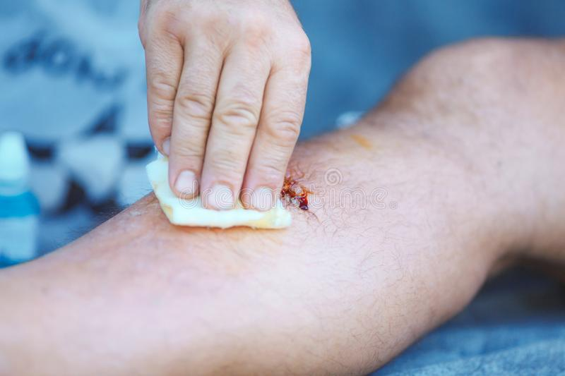 Blood Male Leg Injury Stock Images - Download 196 Royalty