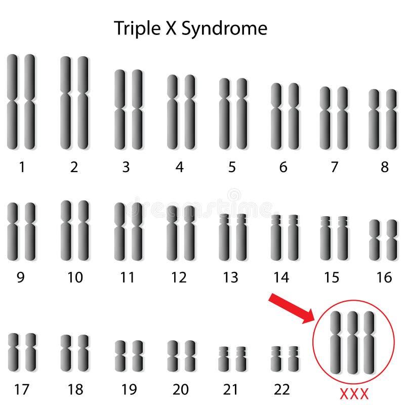 Tredubbelt x-syndrom royaltyfri illustrationer