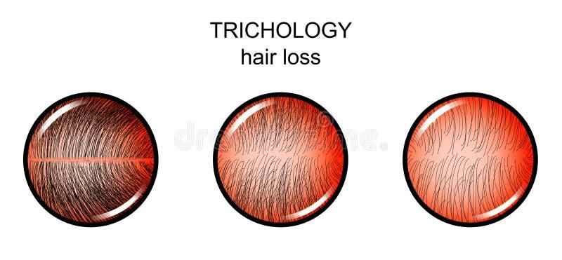 Trichology Haarausfall lizenzfreie abbildung