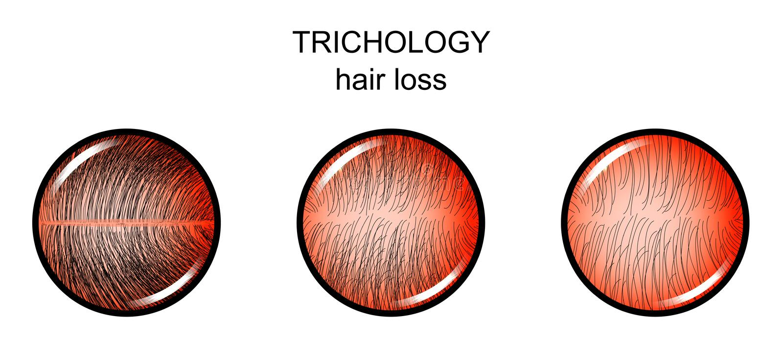 Trichology. hair loss. Vector illustration of trichology. hair loss. dermatology royalty free illustration