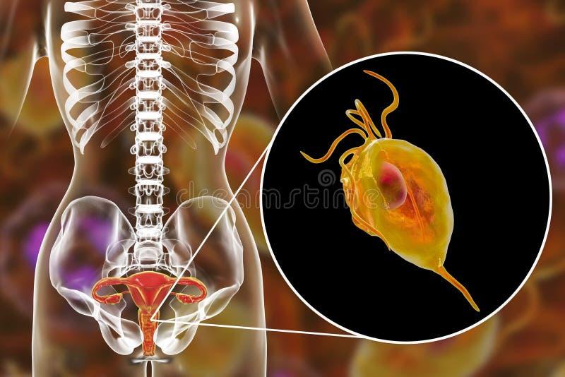 Trichomoniasis fêmea, ilustração que mostra o parasita dos vaginalis de Trichomonas ilustração royalty free