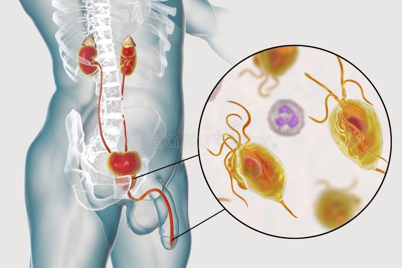 Trichomoniasis infekcja w mężczyzna ilustracja wektor