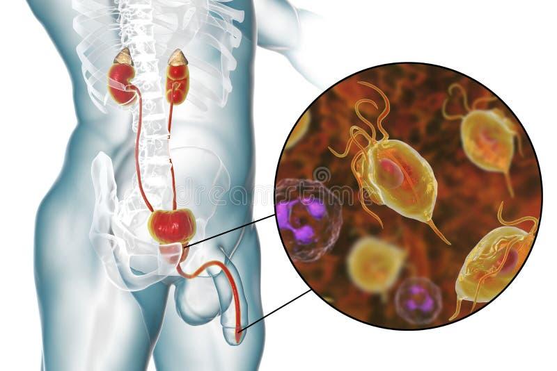 Trichomoniasisinfektion i man vektor illustrationer