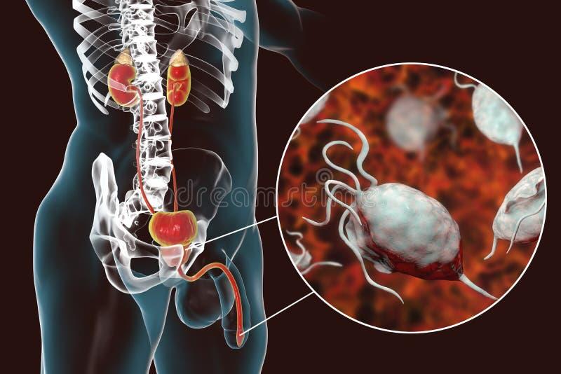 Trichomoniasisinfektion i man royaltyfri illustrationer
