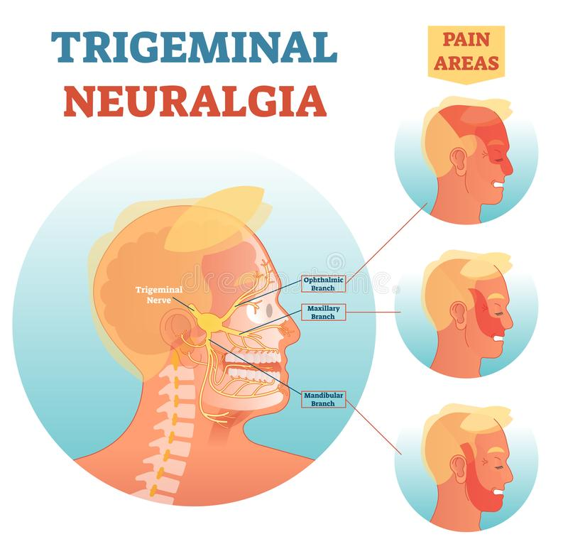Trigeminal neuralgia medical cross section anatomy vector illustration diagram with facial neural network and pain areas. royalty free illustration