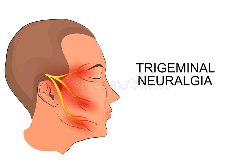 Trigeminalneuralgi neuroscience stock illustrationer