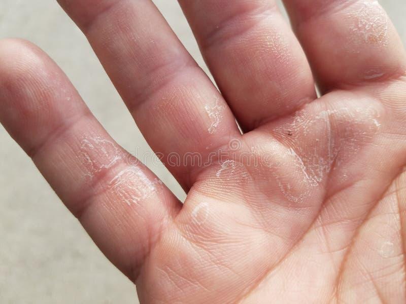 Trocken, flockig, juckend und Fingern an Hand abziehend lizenzfreies stockbild