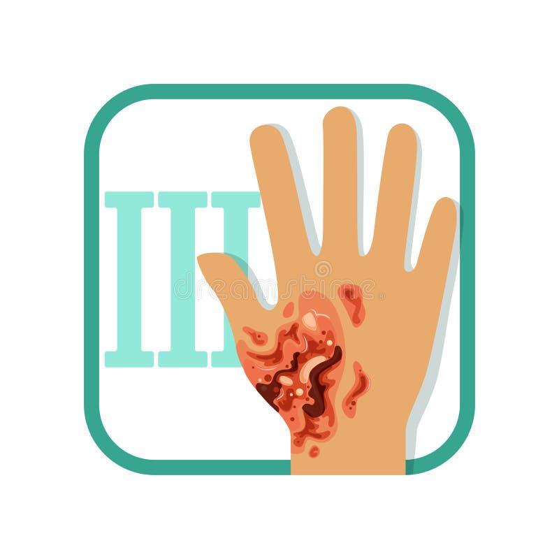 Troisième degré de brûlure Main avec l'épiderme externe endommagé et la couche intérieure de derme de peau Blessure grave Vecteur illustration de vecteur