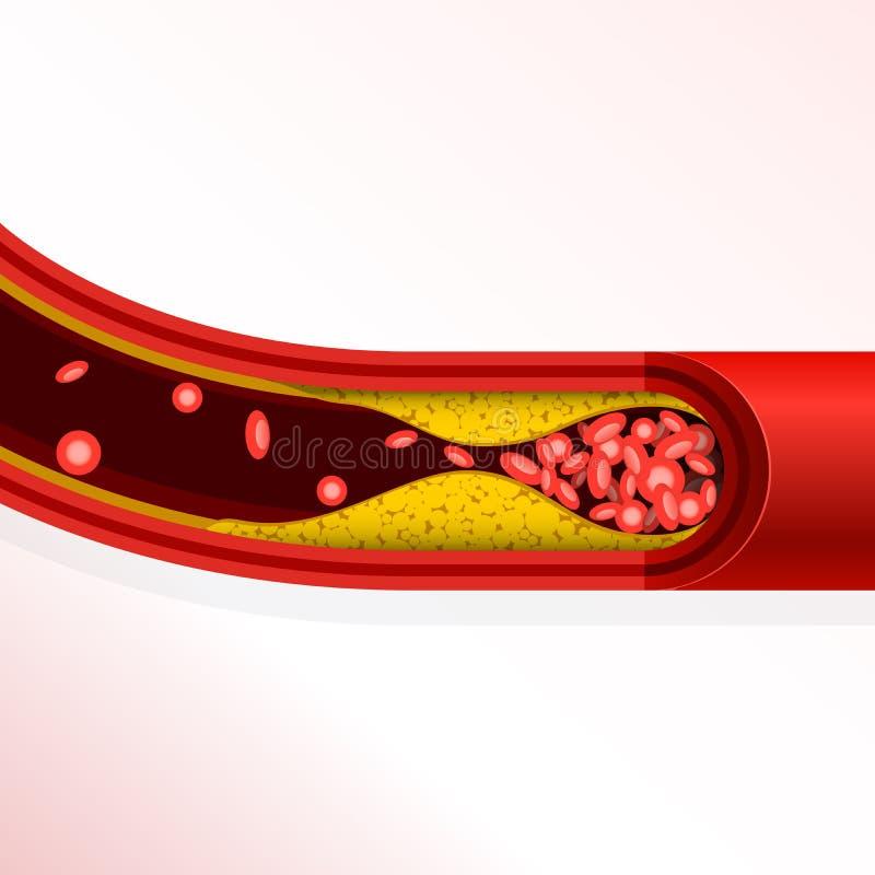 Trombosis de la arteria - acumulación del colesterol, arteriosclerasis stock de ilustración