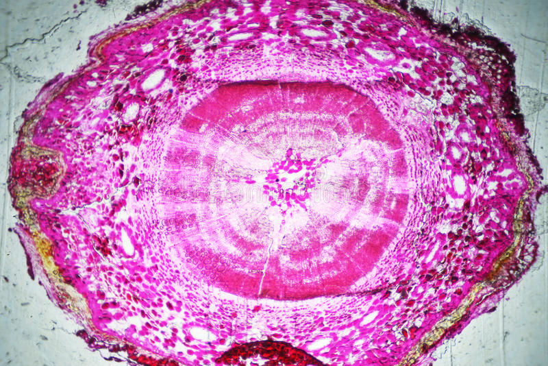 Tronco de Pinetree debajo del microscopio imagenes de archivo