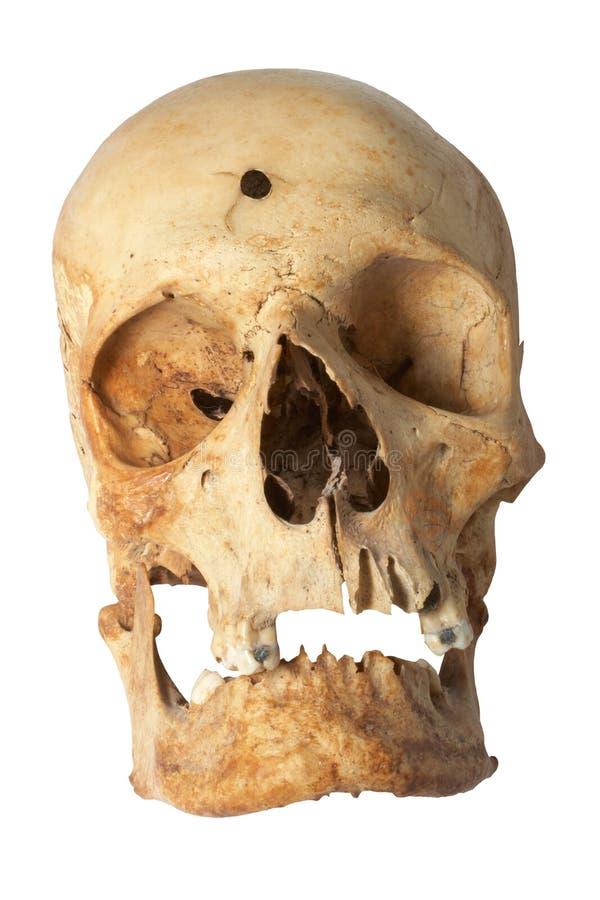 Trou de remboursement in fine dans le crâne humain image stock
