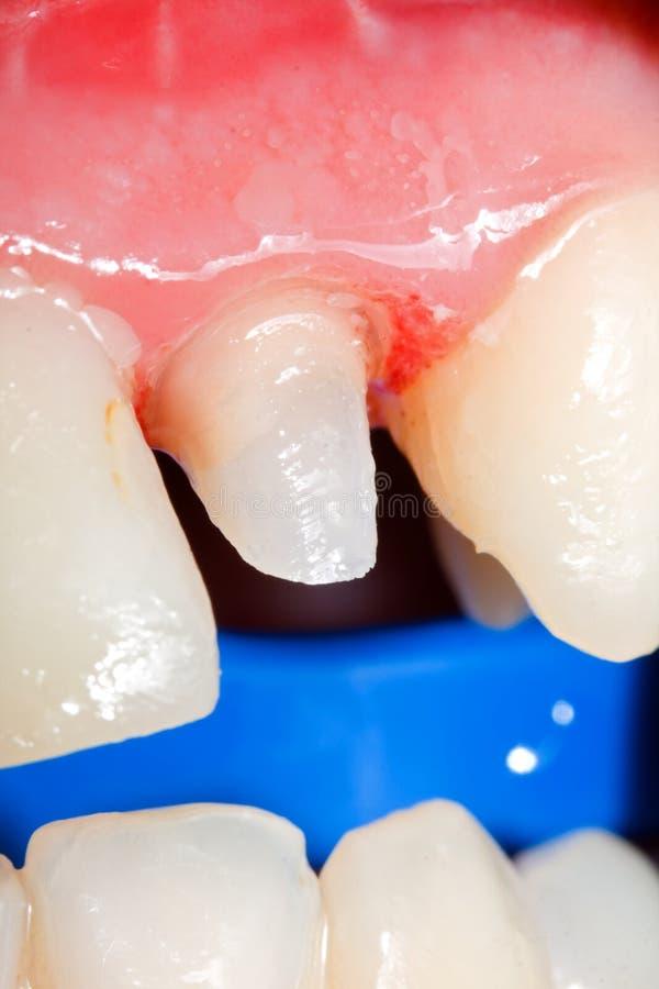 Trozo del diente para la corona fotos de archivo libres de regalías