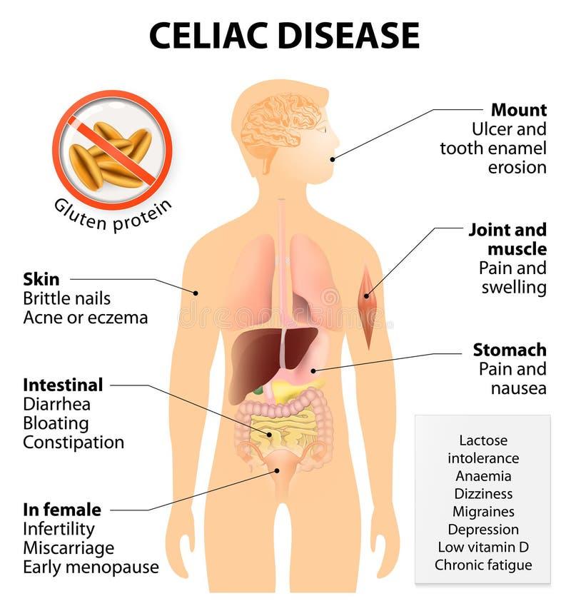 Trzewna choroba lub celiac choroba ilustracja wektor