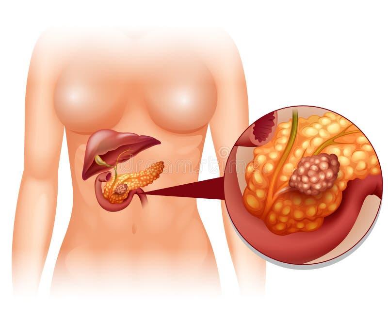 Trzustka nowotwór w kobiecie ilustracja wektor