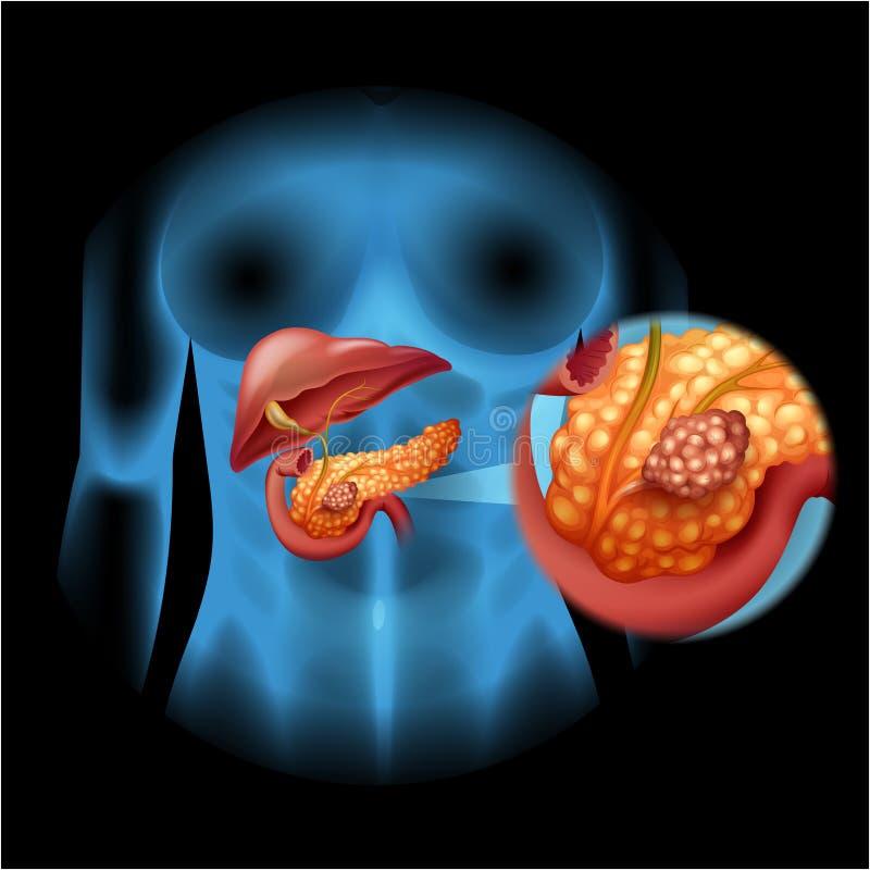 Trzustka nowotworu diagram w szczególe ilustracji