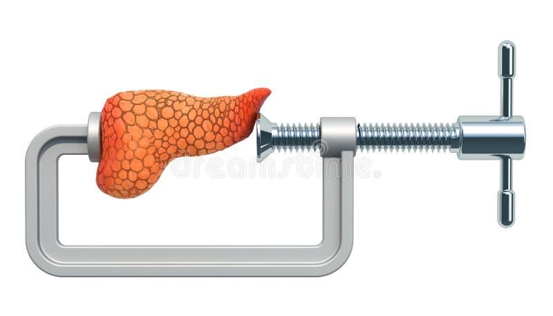 Trzustkowy ból Imadło z ludzką trzustką, 3D rendering royalty ilustracja