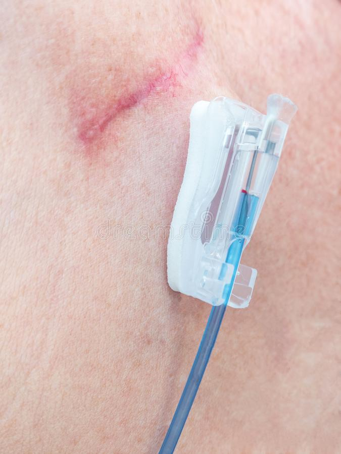 Tube for intravenous fluids injections to implantable port for c. Tube with valve and joint connection for intravenous fluids injections to implantable port for stock image