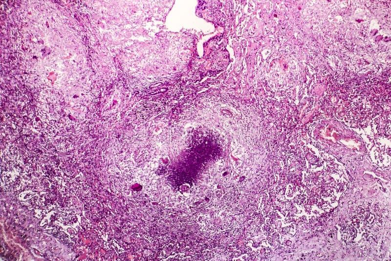 Tubercle ljus micrograph arkivbilder