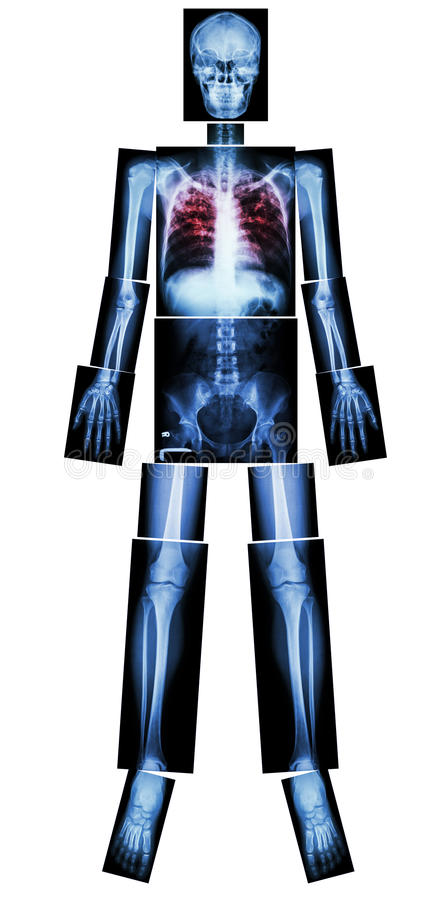 Tubercolosi polmonare (TB) (corpo intero dei raggi x) royalty illustrazione gratis