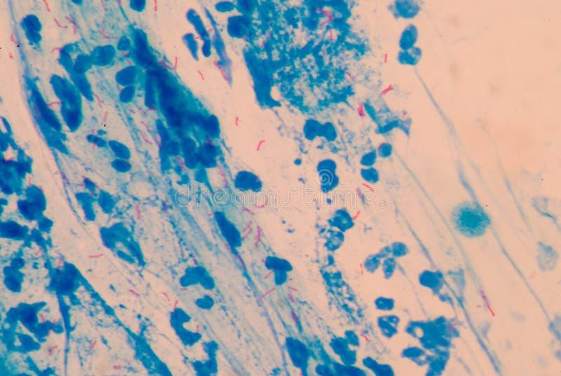 Tuberculose de microbactérie de cellules rouges image libre de droits