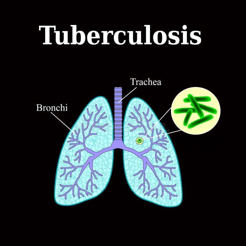 tuberculose longziekte Knobbeltjebacil Vectorillustratie op een zwarte achtergrond royalty-vrije illustratie