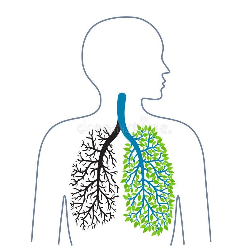 tuberculose longziekte Longkanker Bevordering van gezonde levensstijlen Geneeskunde, gezondheid en ecologie Vector vector illustratie
