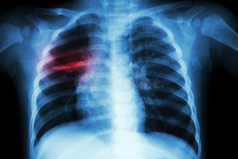 Tuberculose pulmonaa (raio X de caixa da criança: mostre a infiltração desigual no pulmão médio direito) imagem de stock