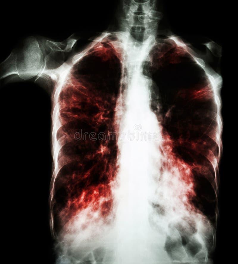 Tuberculose pulmonaa (raio X de caixa do filme: o interstício infiltra ambo o pulmão devido à infecção da tuberculose de Mycobact imagem de stock royalty free