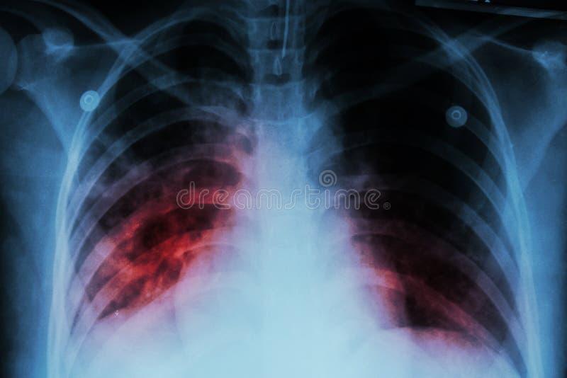 Tuberculose pulmonaa (TB): Infiltração alveolar da mostra do raio X de caixa em ambos pulmão devido à infecção da tuberculose de  fotografia de stock