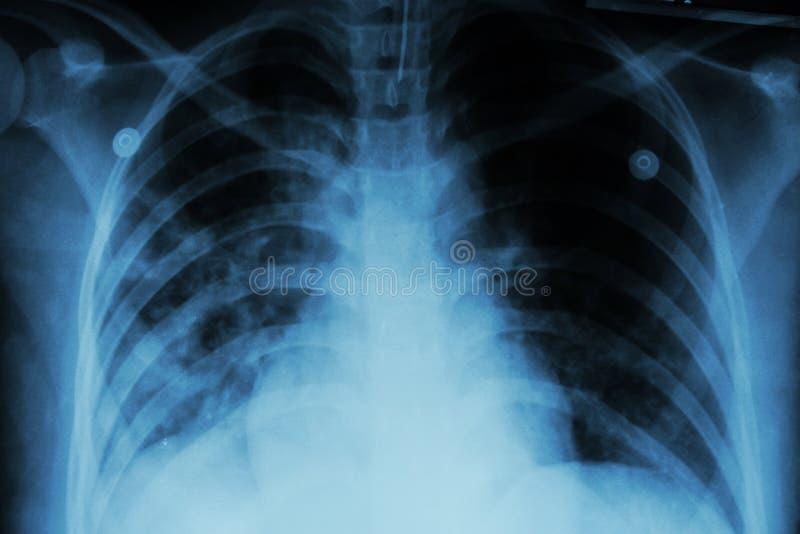 Tuberculose pulmonaa (TB): Infiltração alveolar da mostra do raio X de caixa em ambos pulmão devido à infecção da tuberculose de  imagens de stock