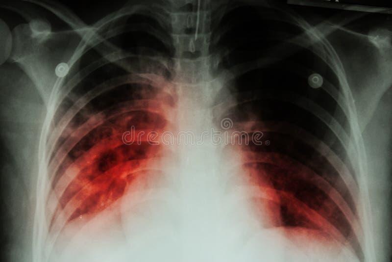 Tuberculose pulmonaa (TB): Infiltração alveolar da mostra do raio X de caixa em ambos pulmão devido ao infectionP da tuberculose  imagens de stock royalty free