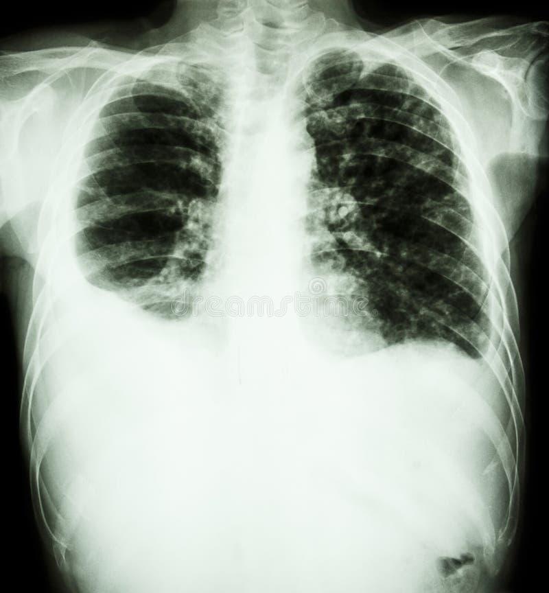 Tuberculose pulmonaire photo stock