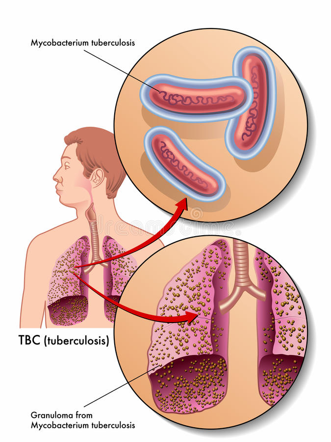Tuberculosis. Medical illustration of the symptoms of tuberculosis vector illustration