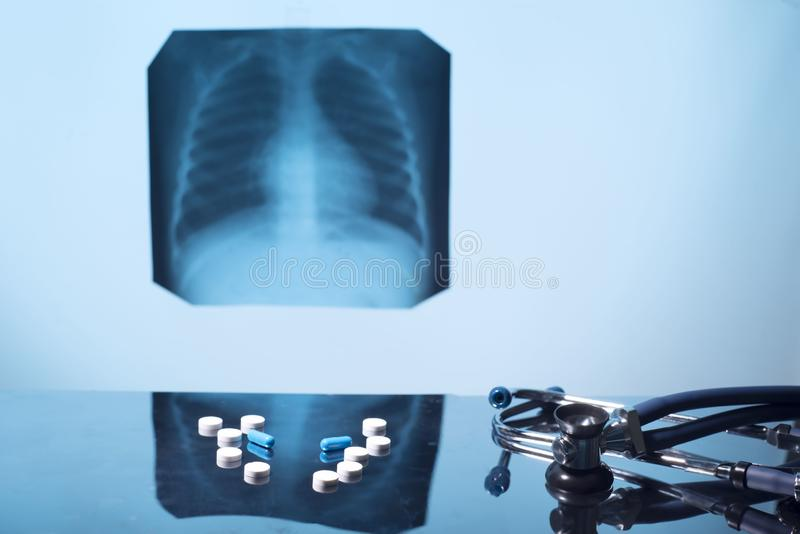 Tuberculosis problem. Lung disease treatment concept including cancer, bronchitis, asthma stock photo