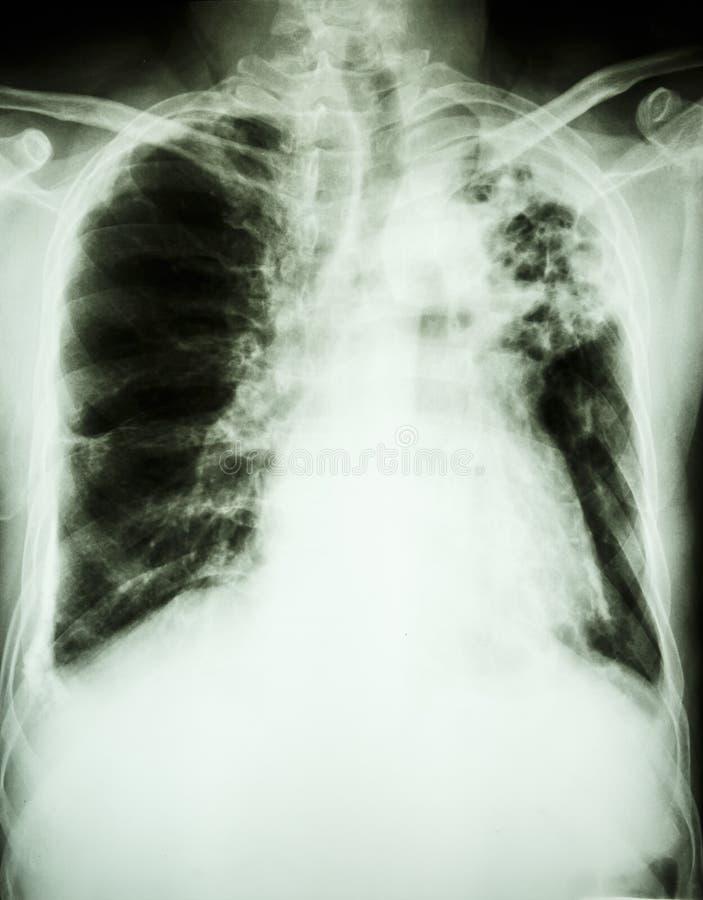 Tuberculosis pulmonar fotos de archivo libres de regalías