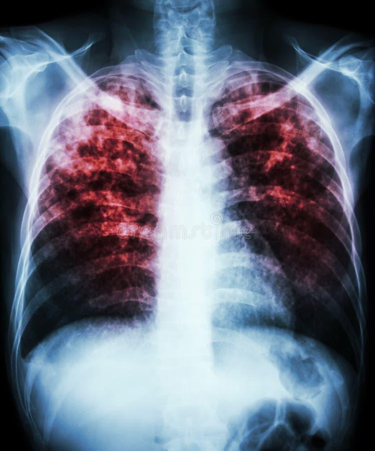 Tuberculosis pulmonar fotografía de archivo libre de regalías