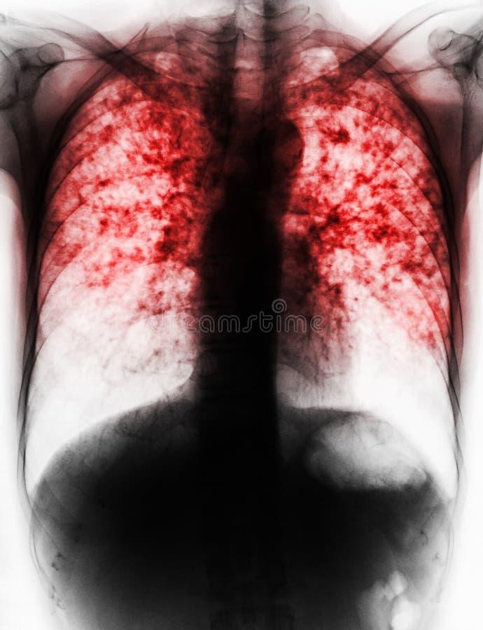 Tuberculosis pulmonar foto de archivo