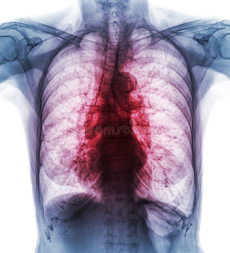 Tuberculosis pulmonar El intersticial de la demostración de la radiografía del pecho de la película infiltra ambo el pulmón debid fotos de archivo