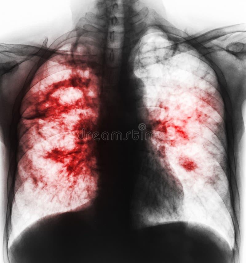 Tuberculosis pulmonar La radiografía de la película de la cavidad de la demostración del pecho en el pulmón derecho y el intersti fotografía de archivo libre de regalías
