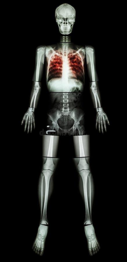 Tuberculosis pulmonar (TB) (cuerpo entero de la radiografía) foto de archivo