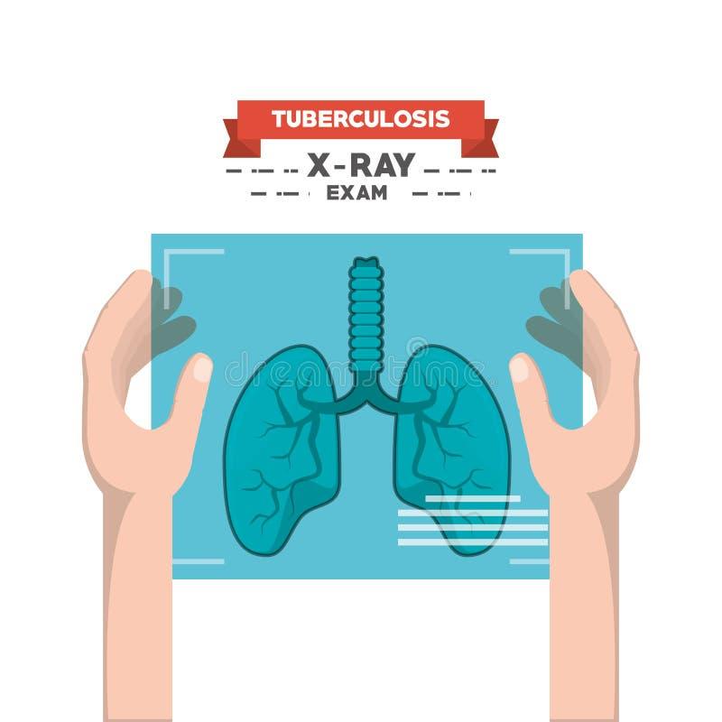 Tubereculosis begreppsdesign royaltyfri illustrationer