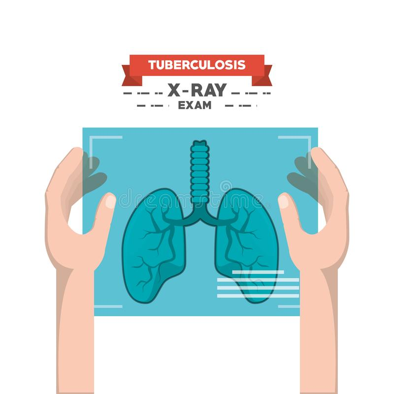 Tubereculosisconceptontwerp royalty-vrije illustratie