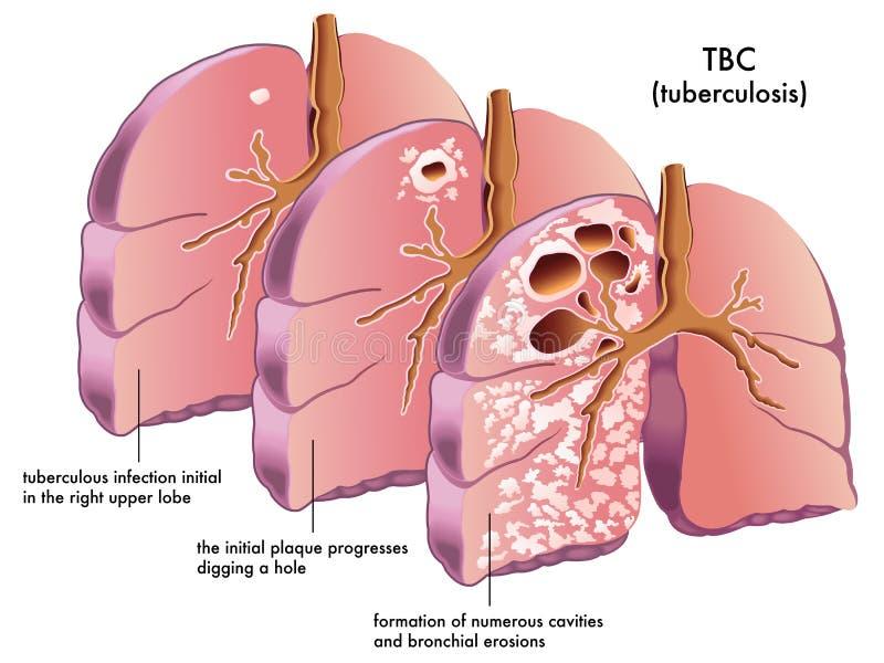 Tuberkulos stock illustrationer