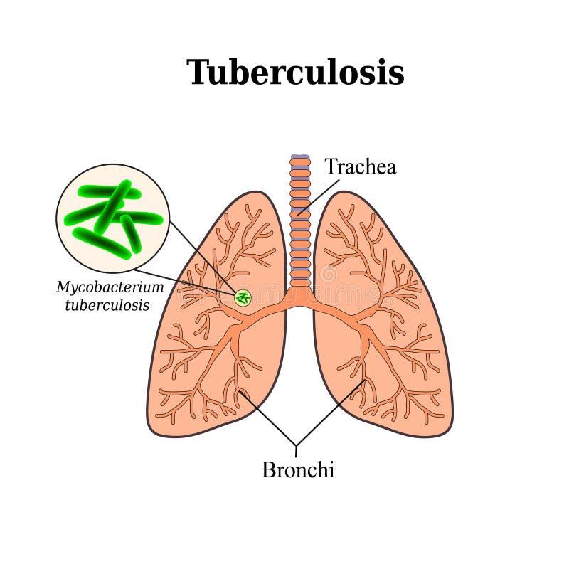 tuberkulos lungsjukdom Tuberclebacill Vektorillustration på isolerad bakgrund royaltyfri illustrationer